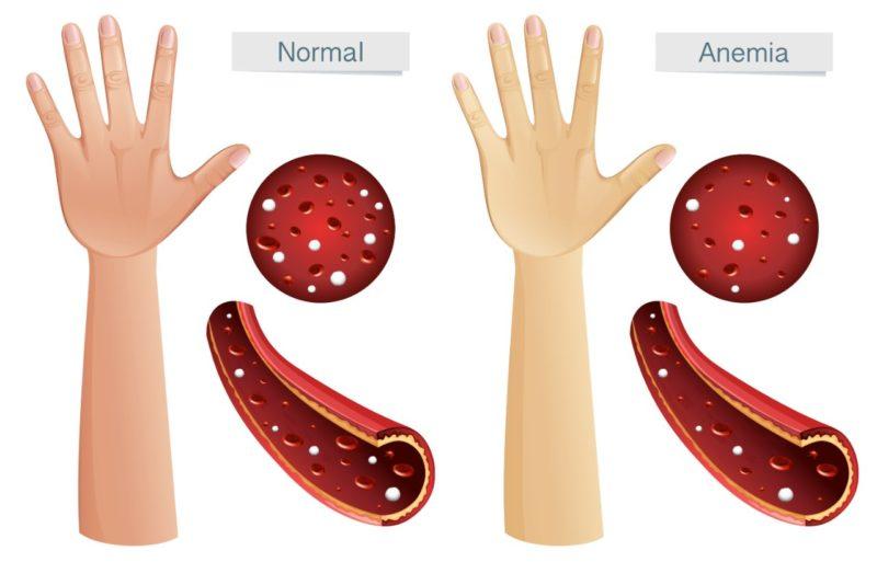 nedostatok zeleza anemia priznaky