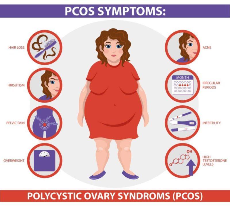 PCOS inozitol menstruacia